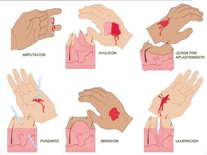 Resultado de imagen para Heridas